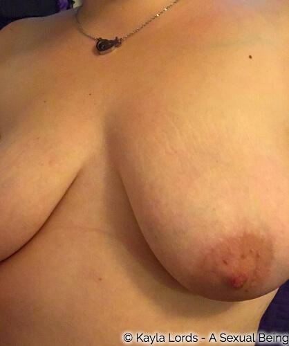 breast free of a bra