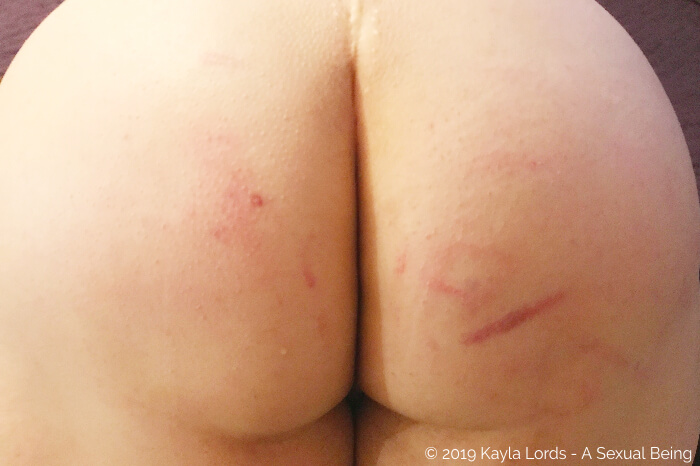 Kayla's butt, marked with bruises and stripes after a kinky scene at the BDSM dungeon